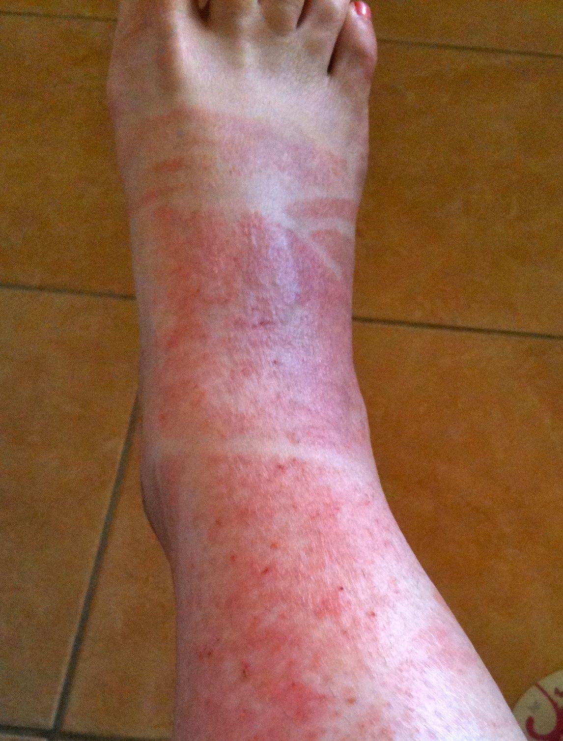 Sunburn (Sun Poisoning) Symptoms, Treatment, Causes - What ...